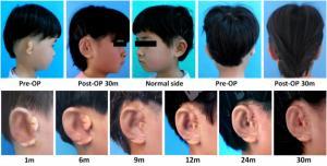 Пятерым детям вырастили новое ухо