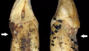 Предки человека имели такие же проблемы с зубами – даже без колы и сахара!