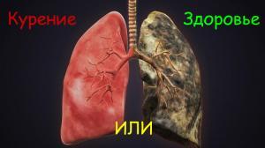 Рак легких - одна из многих причин не курить