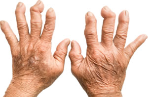 Признаки и лечение ревматоидного артрита
