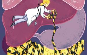 Почему рак поджелудочной железы на подъеме?