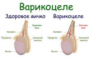 Симптомы и лечение варикоцеле