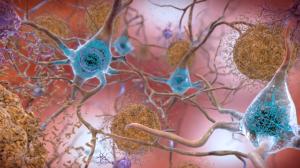 Прекращены исследования препарата от Альцгеймера