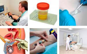 Диагностика предстательной железы