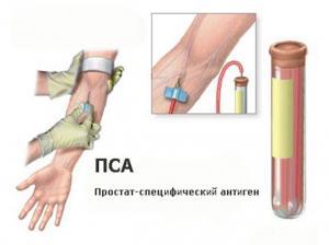 Простат-специфический антиген