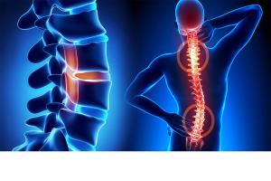 Остеохондроз, сколиоз, остеоартроз