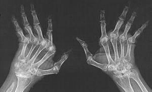 BIOCAD познакомит людей с ревматоидным артритом