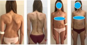 Оперативный метод лечения сколиоза