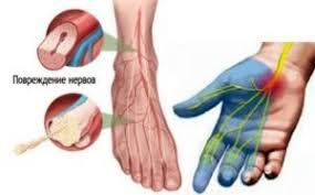 Полинейропатия: формы, симптомы, причины