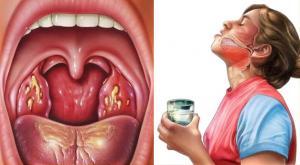 Лечение гнойной ангины