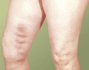 Методы лечения тромбофлебита нижних конечностей