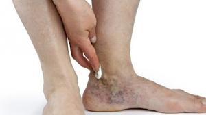 Болезни вен на ногах и методы лечения