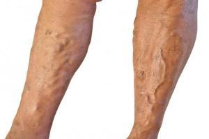 Диагностика тромбофлебита поверхностных вен нижних конечностей и лечение