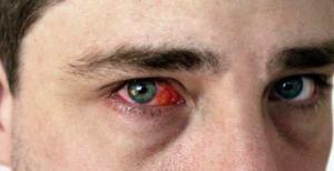 Что делать если глаза красные и болят и чешутся?
