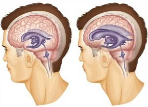Лечение внутричерепного давления (ВЧД)