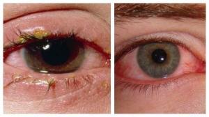 Как передается глазной конъюнктивит от человека к человеку?