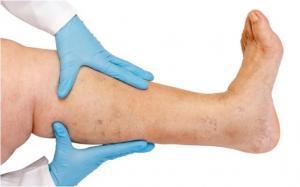 Массаж при варикозе ног – можно ли?
