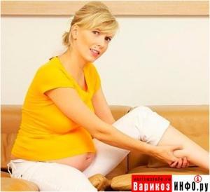 Как избежать варикоза во время беременности?