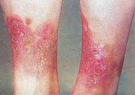 Симптомы, причины и методы лечения варикозного дерматита