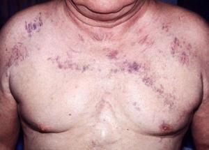 Причины и симптомы синдрома верхней полой вены