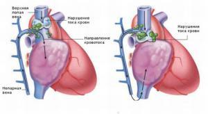Причины и методы лечения тромбоза нижней полой вены