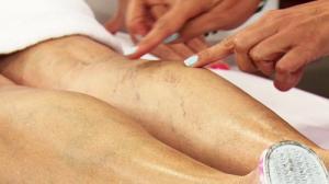 Симптомы, причины и лечение варикозного расширения вен на ногах