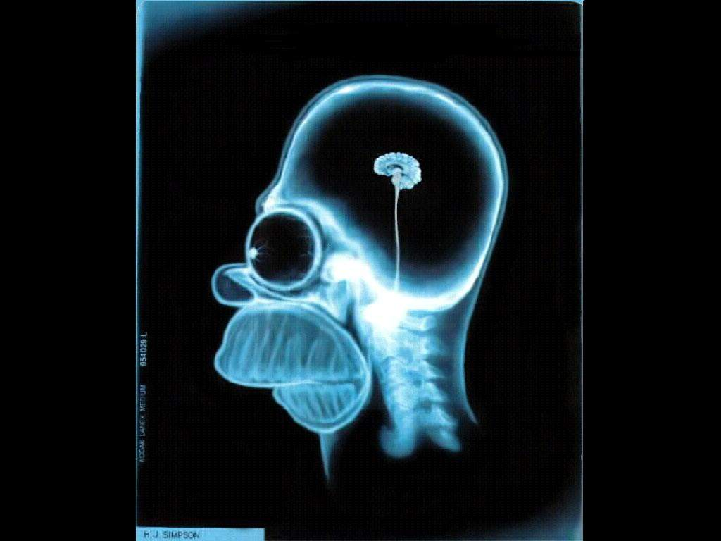 ущербный мозг