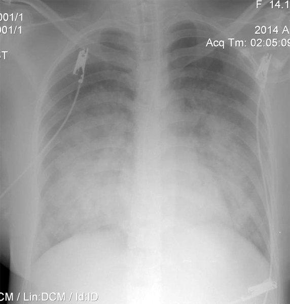 Таинственный пациент: лихорадка на последних сроках беременности