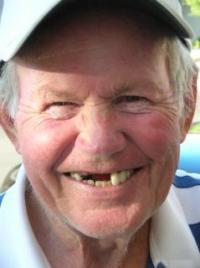 Потеря зубов у пожилых людей связана со снижением физической и психической активности