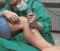 операция по удалению вен