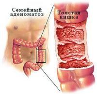 Семейный аденоматоз толстой кишки