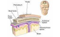 Уникальная операция в Техасе: человеку пересажен часть черепа вместе со скальпом