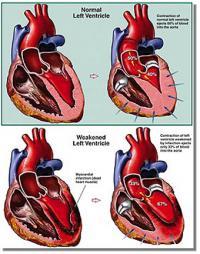 Лечение сердечной недостаточности глюкозой