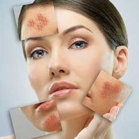 Что такое купероз? Чем отличается купероз на лице и куперозная кожа на носу и как с этим бороться?