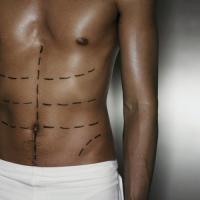 Мужчины все чаще ложатся под нож хирурга